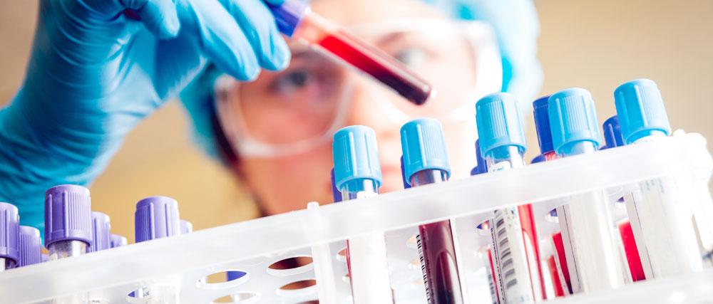 Prenotazione analisi di laboratorio