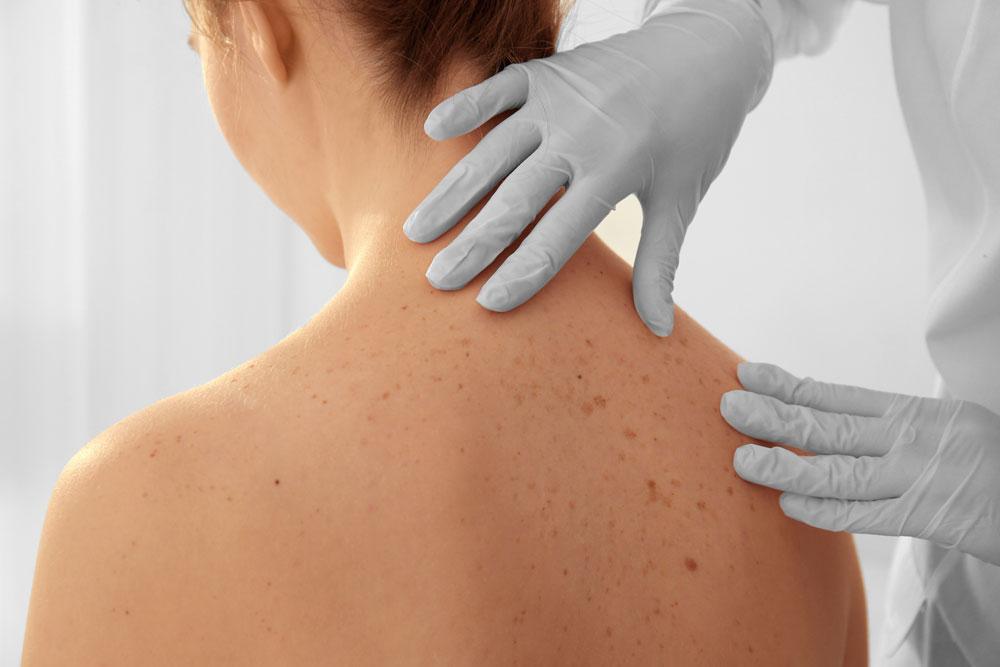 Visita medica specialistica dermatologia